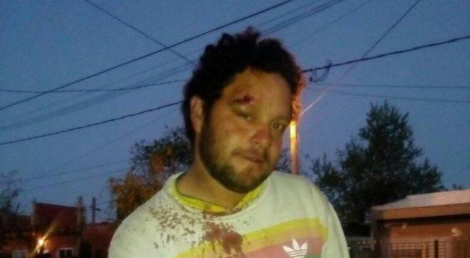 Cuatro encapuchados armados atacaron a testigo y víctima de juicio contra 11 policías