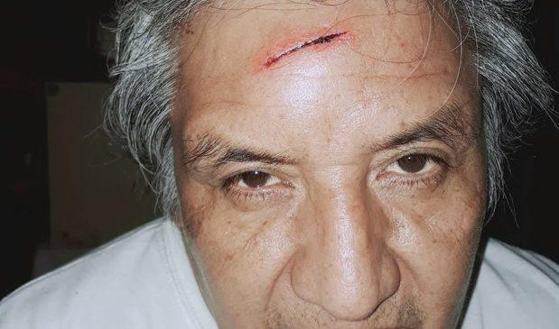 Ataque contra el militante anticarcelario Alfredo Cuellar