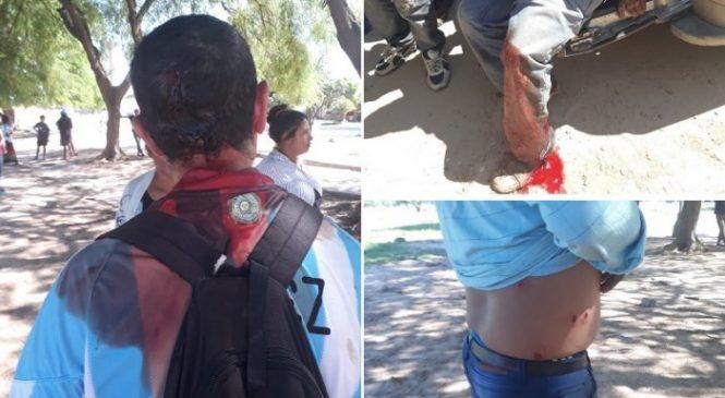 Tartagal: otra vez la Policía de Urtubey reprime a pueblos originarios