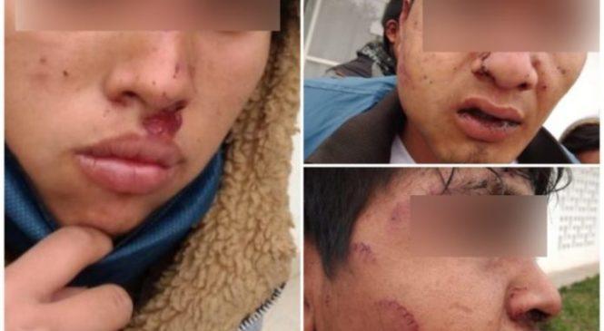 Violencia contra jóvenes qom: liberan a los cuatro policías y Amnistía observará el proceso judicial