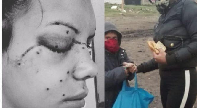 Una joven recibió dos disparos de plomo por parte de la policía en el desalojo de Ciudad Evita